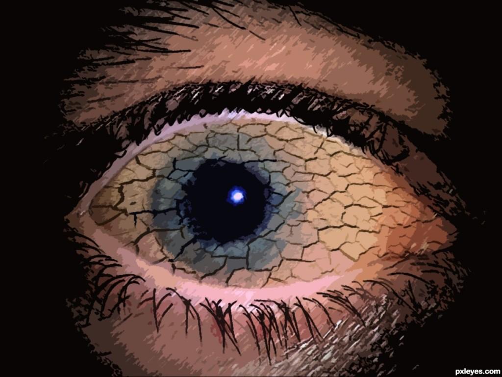 dry-eye-4d48938cee6da_hires